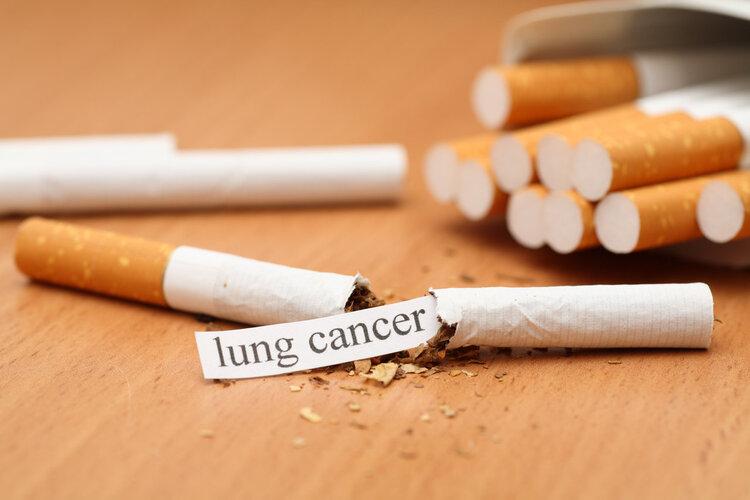 长期抽烟的人,最怕出现这5种症状!
